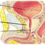 Viêm tuyến tiền liệt: Nguyên nhân, triệu chứng và chữa trị