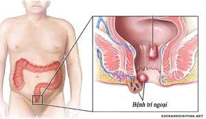 Biểu hiện của bệnh trĩ ngoại là gì?