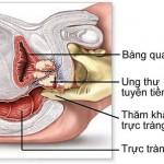 Dấu hiệu ung thư tuyến tiền liệt