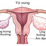 Dấu hiệu cảnh báo ung thư buồng trứng ở chị em