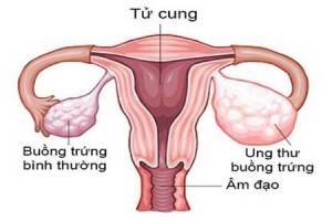 Dấu hiệu ung thư buồng trứng ở chị em