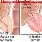 Một số loại thuốc tân dược chữa viêm tuyến tiền liệt