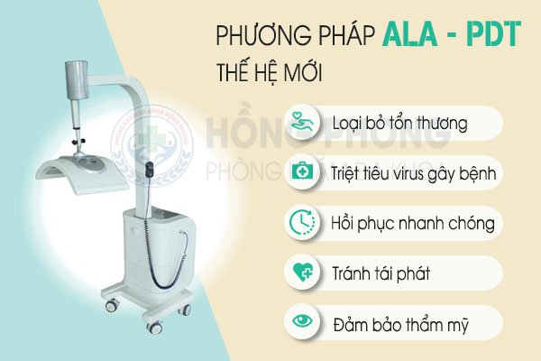 phuong-phap-ala