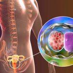 Cách đặt thuốc điều trị viêm cổ tử cung